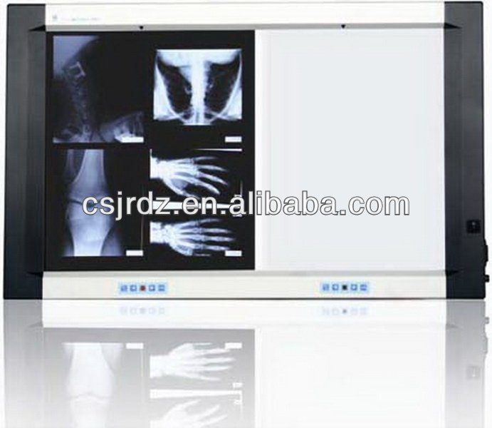 JD-01BIII high brightness x ray film viewer