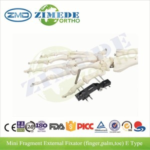 CE approved orthopedic thumb fracture external fixation surgical instruments