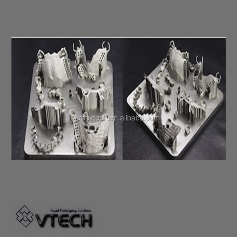 3D prosthetics custom manufacturing metal parts