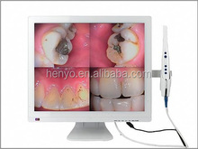 Newest All-in-one Intraoral Camera, Dental equipments with dental arm