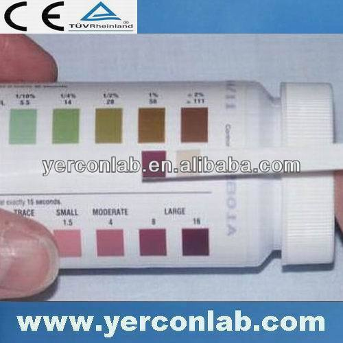 chemical test ketone urine
