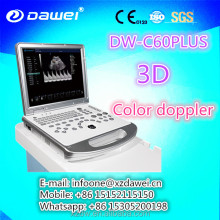 Portable Ultrasonic Diagnostic Devices Type Medical products Doppler Ultrasound Phase Array Ultrasound Probe