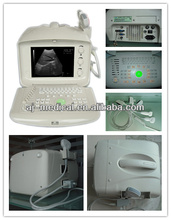 AJ-6100B CE Approved Portable Desktop Type B Mode Convex Ultrasound Scanner