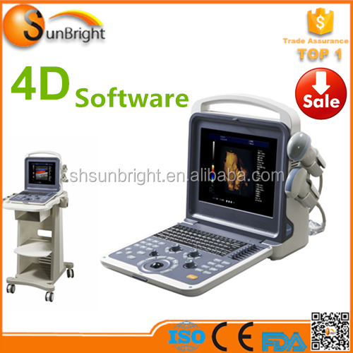 doppler portatil 4d ecografo/3d 4d colour doppler ultrasound price