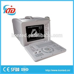 hot selling trolley digital ultrasound scanner made in China