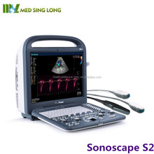 2017 High-Performance Color System PC platform DPI/THI sonoscape S2 ultrasound scanner price