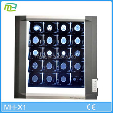 MH-X1 Top quality cheap price single medical x ray film view box with LED light , x ray viewer