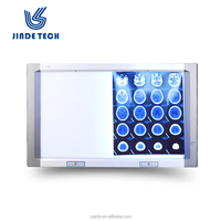 x-ray film viewer x ray film viewer led x ray medical view box led negatoscope radiography film viewer