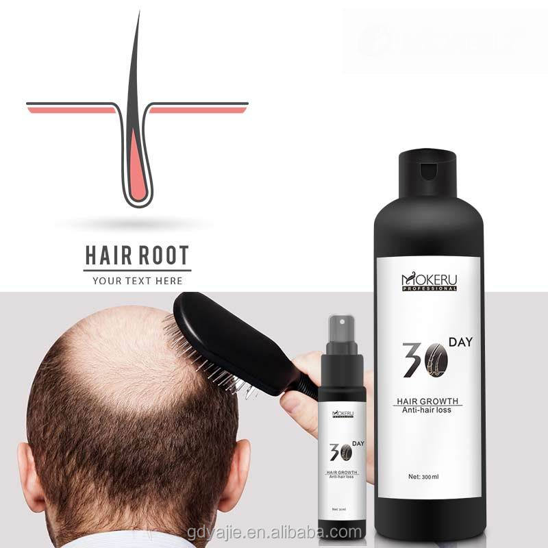 2017 best baldness treatment sunburst hair growth comb hair loss treatment cream for man