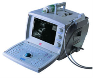 Portable ultrasound scanner