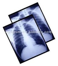 Medical x-ray dry laser film