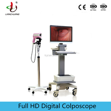 CE certificated HD video colposcope for gynecology cervical cancer examination