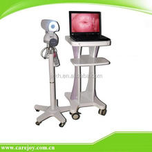 Medical Equipment Gynecology -Optical Colposcope