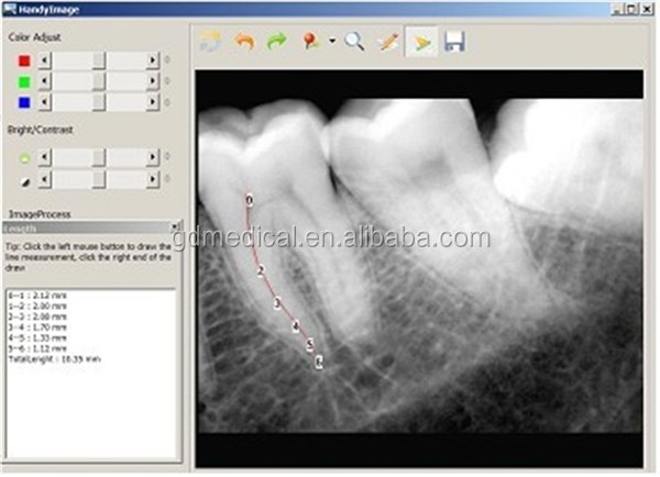 //DXR-01/02// Dental X-Ray Sensor