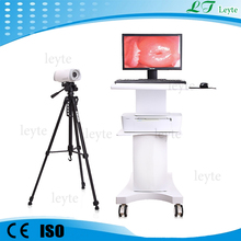 LT9802 portable digital video colposcope