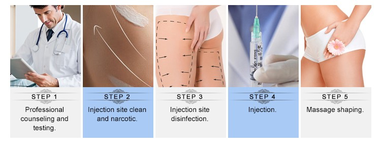Medical Body Beauty 10ml Subskin Breast Filler Injections