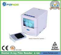 HOT PRODUCT--Digital X Ray Film Reader (Model:E-188)