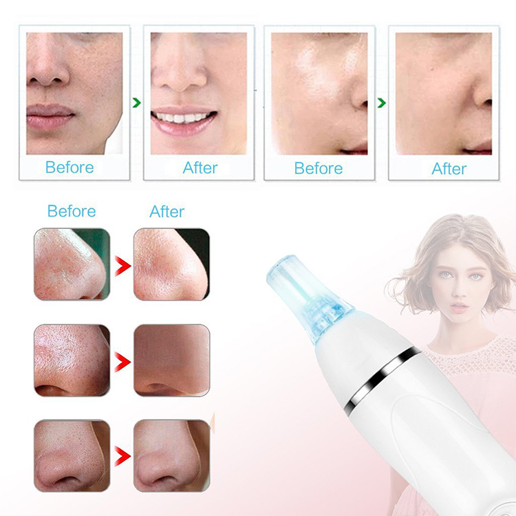 portable fda approved vacuum spot cleaner blackhead vacuum removal sucker tool remover kit device pimple comedone extractor tool