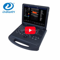 New tech cheap ultrasound diagnostic system 3d laptop & low price mini laptop ultrasound
