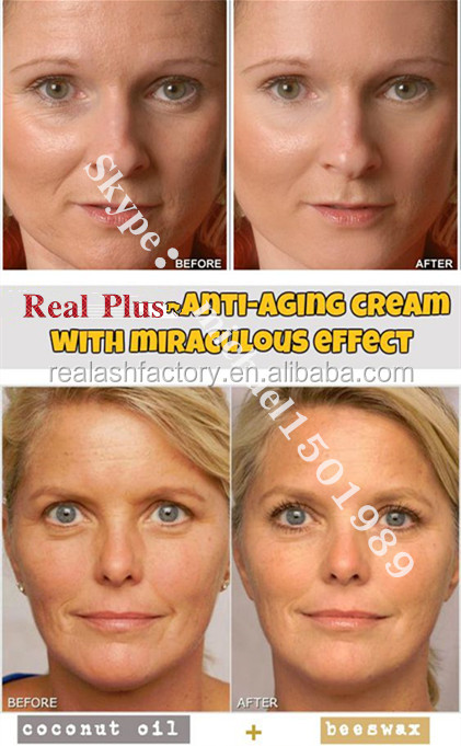 Anti-Aging Moisturizer to Help With Wrinkles & Acne - Real plus reborn cream