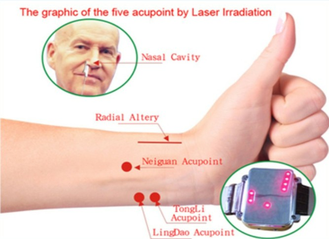 FDA cleared laser photocoagulation what is type 2 diabetes