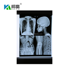 Laser printing blue medical film substitute agfa x-ray film