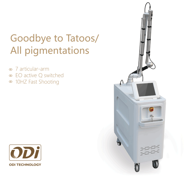 Hot laser tattoo swich q-nd carbon powder tattoo pigment removal active laser tattoo removal machine