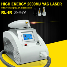 2016 professional laser tattoo removal machine / q-switch nd yag laser price