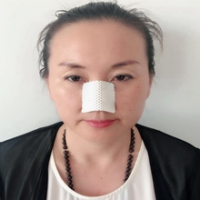 Thermoplastic Nasal Splint for Orthopedic Fracture Nose Surgery Rhinoplasty Rehabilitation