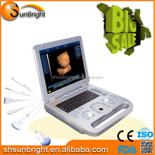 4D Ultrasound Machine/Color Doppler System