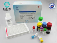 One-step Anti-HIV(1+2) Antigen Test (strip) rapid test kit