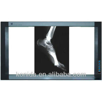 LED viewer for x ray film,LED film viewer,viewer for LED