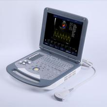 Medical Device - 2D Doppler Portable Laptop Ultrasound Machine/ Scanner / USG Machine CE Approved