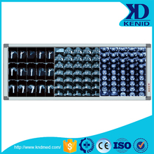 LED High Luminance X Ray Film Illuminator/x-ray film viewing box