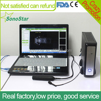 Sonostar Laptop digital diagnostic Ophthalmic A B ultrasound with CE and ISO SAB-200