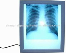 medical x ray film viewer