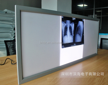 diagnosis appliances x-ray viewbox high brightness led x ray negatoscope film viewer best quality