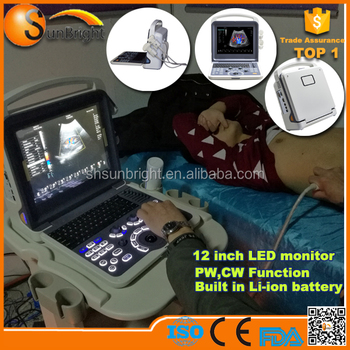 SUN-906E Price of Medical Equipments Color Doppler 3D 4D Ultrasound