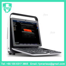 FY-S8EXP Ultrasound Portable Cardiac With Cardiology Ultrasound Software