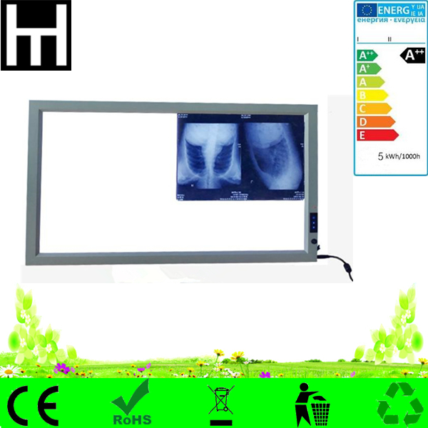 High quality Slim auto-induction PWM dimmable single double led medical radiography film viewer