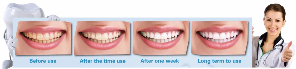 Magic teeth clean kit Just water needed Dental Whitening Products NOT hurt the enamel