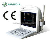 portable color doppler ultra sound machine & laptop ultrasound scanner