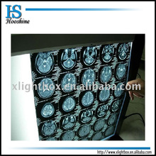 Super Thin LED X Ray Film Viewer