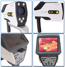 IKEDA Digital Video Colposcope Camera/Colposcope Software