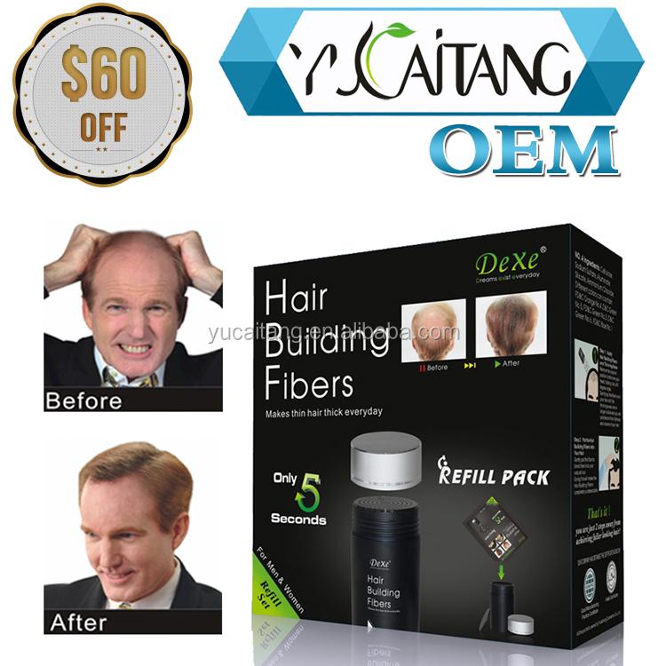 best hair growth treatment for men