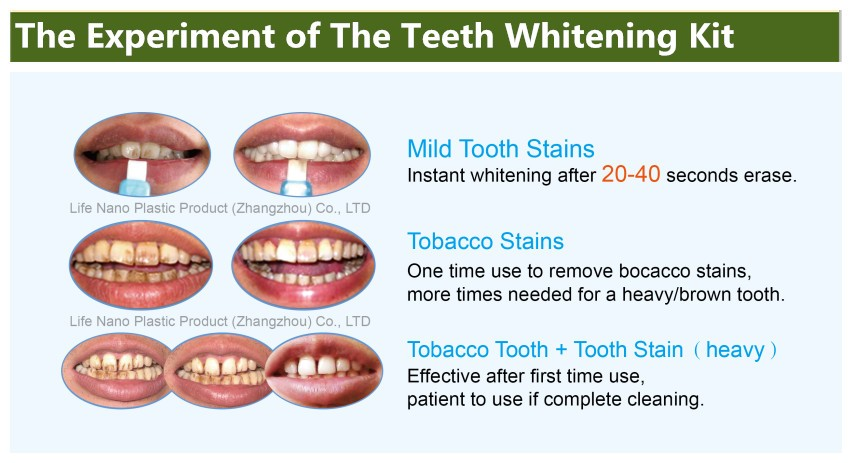 New Professional Take Home Teeth Whitening Kit For Whitening Teeth