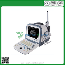 YSB5522 CE Approval Ultrasound Device For Home Use