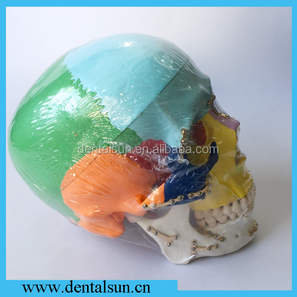 M5005 Dental Skull Model/Fracture Skull Model Fixed By Titanium/Medical Anatomical Skull Model