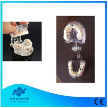 Human dental problems teeth model for teaching medical study