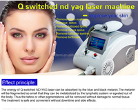 Factory Direct sale yag laser/ 1600mj Strong Power tattoo removal q switch nd yag laser